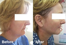 Laser liposuction on the neck.