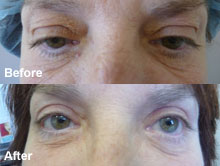 Improve your complexion and vision with eyelid surgery.