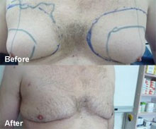 "Men can remove ""man boobs"" with a breast reduction."