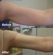 Laser Liposuction on arms.
