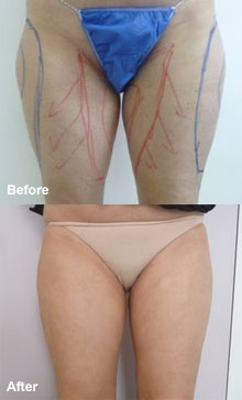 Laser liposuction inner/outer thigh.