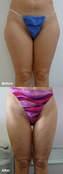 Laser liposuction thigh.