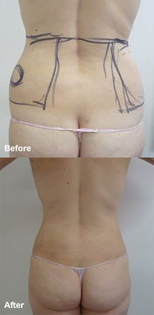 Laser-Assisted Liposuction (Loins).