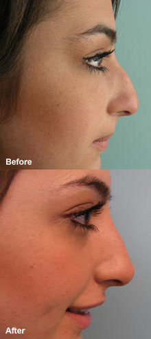 Improve your appearance with non-surgical treatments.