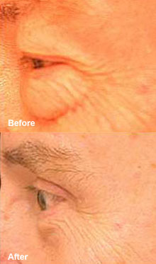 Laser surgery can remove puffy bags under your eyes.