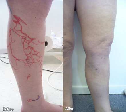 Laurea can assist with varicose veins.
