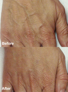 Improvements for ageing hands.