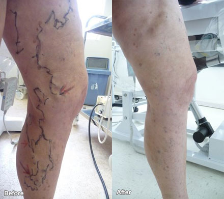 Laurea can assist with bulging veins.