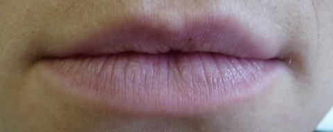 juvederm ultra plus lips 14/5/09