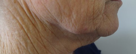 110 before facelift AND Fractional laser