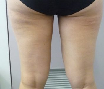 114 after Lipomatic vibration liposuction